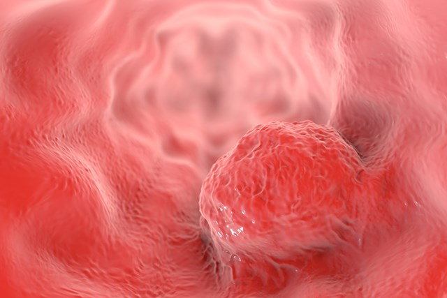 Oral Microbiome Composition Linked to Esophageal Cancer Risk