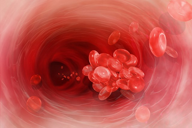Aspirin Does Not Reduce Risk of Venous Thromboembolism in Multiple Myeloma