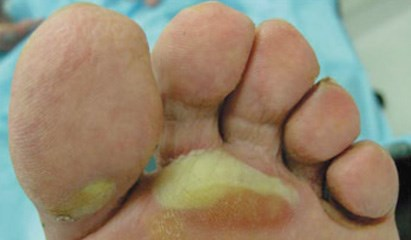 Prevention and management of hand-foot syndromes