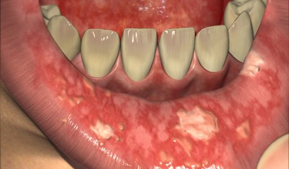 Oral care considerations during the patient's cancer treatment