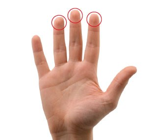 There was a statistically significant improvement in knowledge of self-identification and management of hand-foot syndrome.