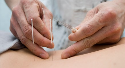 Exploring holistic medicine: Using acupuncture to relieve cancer-related fatigue