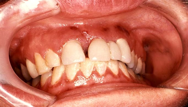 Labial & Gingival Kaposi Sarcoma