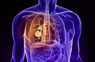 Scientists discover gene that prevents lung cancer metastasis