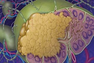 Early relapse of follicular lymphoma may increase risk of death