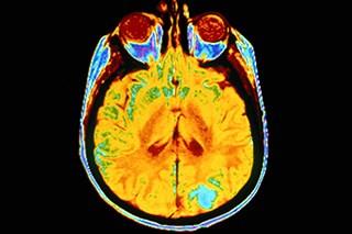 Durable Response Achieved With Nivolumab in Untreated Melanoma Brain Metastases