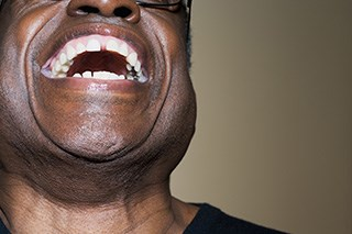 How men used humor to cope with the devastating physical consequences of penile cancer