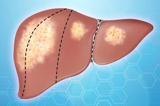 Approximately 29,000 deaths from liver cancer are projected in the United States this year.