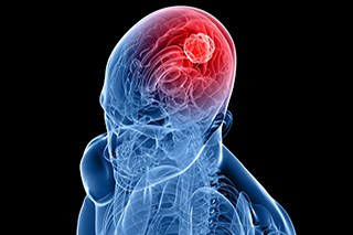 Existing Drug May Limit Recurrence and Metastasis of Glioblastoma Multiforme
