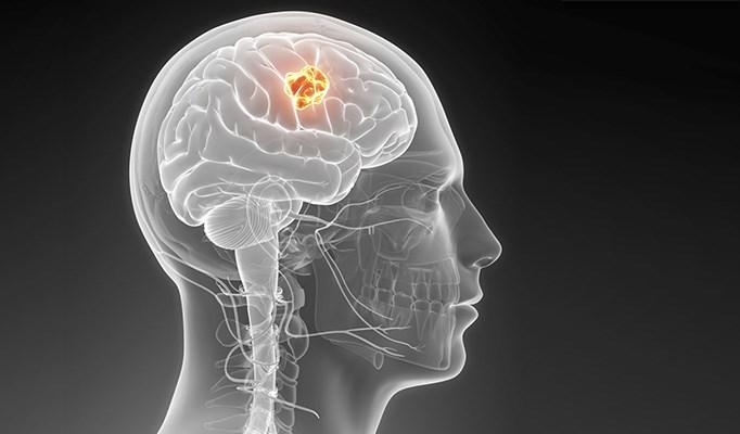 Wireless phone may increase risk of gliomas