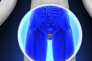 Dose-escalated radiation does not benefit patients with low-risk prostate cancer