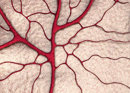 Splanchnic venous thrombosis may suggest undiagnosed cancer