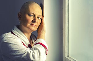 Alopecia is a common side effect of chemotherapy.