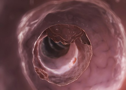 Increased selenium levels associated with reduced risk of colorectal cancer
