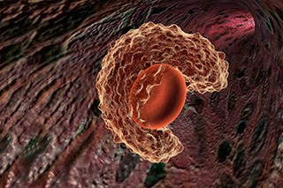 Chemoimmunotherapy Increases Survival in Triple-Negative Breast Cancer