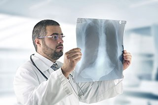 Biomarker Is Diagnostic of Early Lung Cancer and Prognostic of Survival