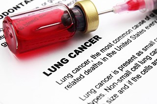 Updated guideline hopeful for patients with lung cancer