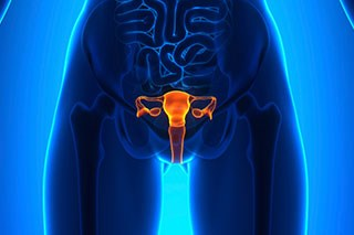 A new therapeutic target for a particularly aggressive form of ovarian cancer has been found.