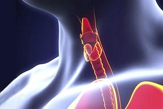 Dabrafenib-Trametinib Combination Approved for Mutation-Positive Thyroid Cancer