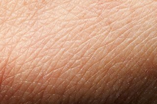 Atopic Dermatitis Linked to Increased Risk of Skin Cancer