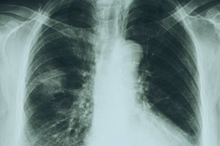 The timing of adjuvant chemotherapy could be a factor in lung cancer survival.