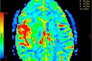 Cancer-related cognitive impairments in patients receiving adjuvant chemotherapy may be associated with under-recruitment of brain regions.
