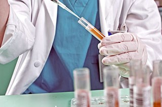 A new test using urine analysis can increase prostate cancer detection.