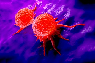 Experimental Drug Improves Immunotherapy Activity in Triple-Negative Breast Cancer