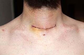 managing tsh levels after total thyroidectomy ona