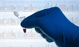 Researchers at the Mayo Clinic suggest that patients with pancreatic cancer be screened for common germline mutations.