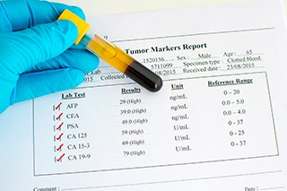 New Research Questions Recommendations Regarding PSA Tests for Prostate Cancer Screening