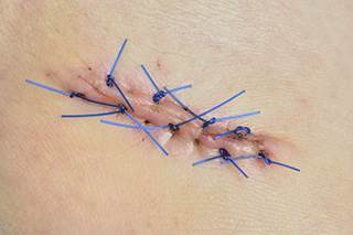 Few Patients Wish To Receive Skin Cancer Biopsy Results In Person Ona