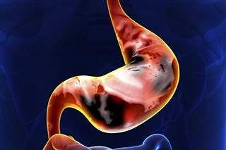 A new breath test showed 85% accuracy in the diagnosis of stomach and esophageal cancer.