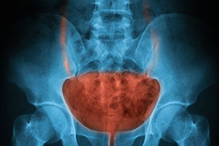 The addition of fluorouracil and mitomycin to radiotherapy improves bladder cancer-specific survival.