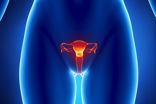 Obesity is an established risk factor for endometrial cancer.