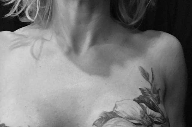 Tattooed botanical imagery can conceal cancer scars and can aid psychological recovery.