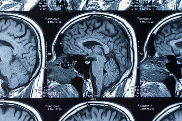 Approximately 30,000 Americans are diagnosed with glioblastoma each year.