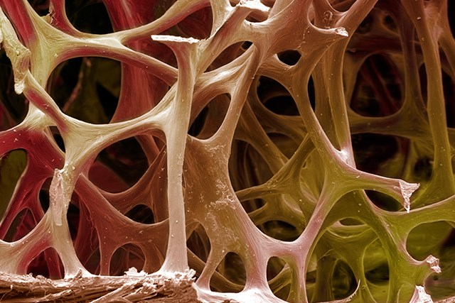 Patients with nonmetastatic prostate cancer taking denosumab had improved bone mineral density, researchers found.