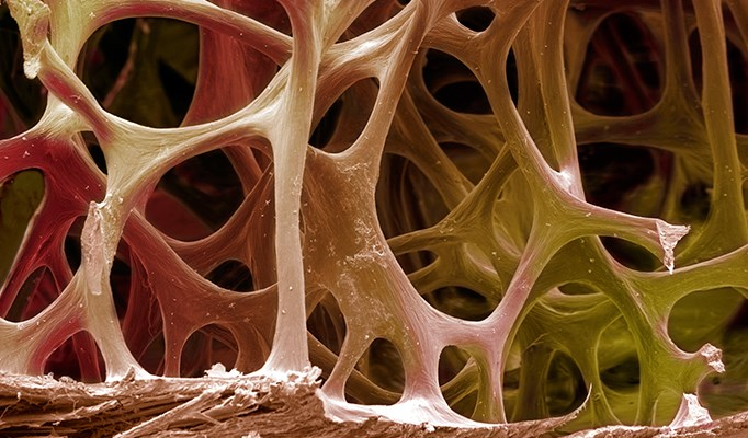 Bisphosphonate Therapy Underutilized in Multiple Myeloma Bone Disease Management