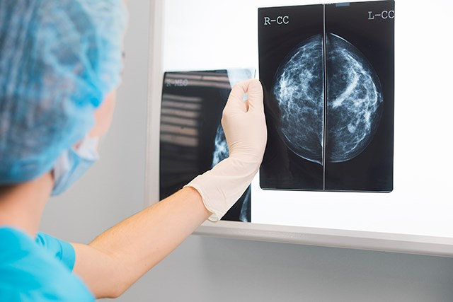Options for breast reconstruction are dependent on the type of breast cancer and other factors, such as the patient's age.