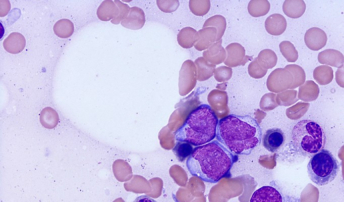 Imatinib Determined the Most Cost-Effective Frontline TKI for Chronic Myeloid Leukemia
