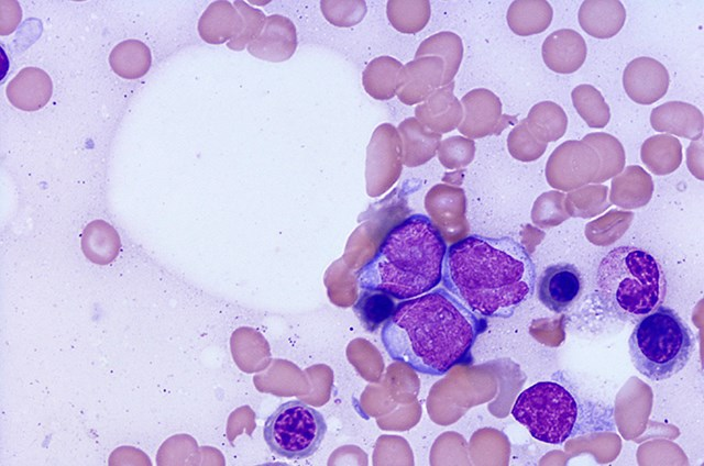 Individuals at high risk of developing AML can be identified before symptoms appear, research indicates.