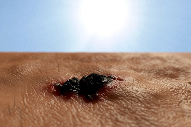 A review of 896 patients who had undergone SLNB for primary localized cutaneous melanoma was conducted for this study.