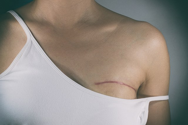 Breast conserving therapy and mastectomy offer equivalent survival in women with early-stage breast cancer.
