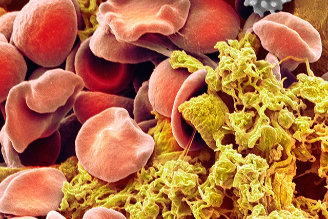 Eltrombopag treatment was found to increase platelet counts and reduce bleeding in patients with chronic ITP.