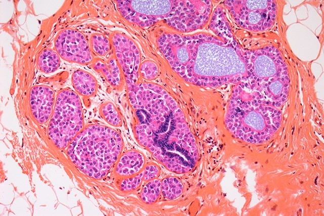 Researchers conducted a metabolomics study to investigate the effect of palbociclib and letrozole on cancer cells.