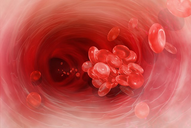 Risk Factors for Arterial, Venous Thrombosis Differ in Polycythemia Vera