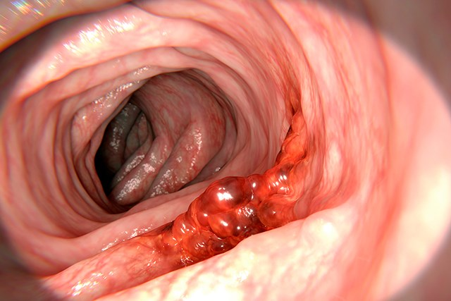 Current colorectal cancer screening methods have low sensitivity for precancerous lesions.