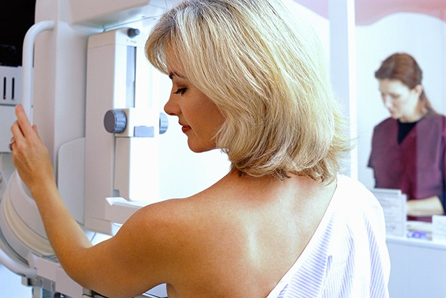 A High Number of Breast Cancer Survivors Do Not Undergo Annual Surveillance