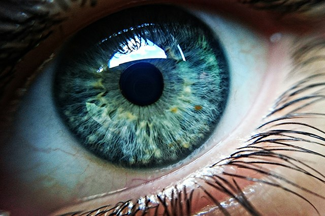Iris pigmented lesions were found more often in green/hazel eyes, researchers found.